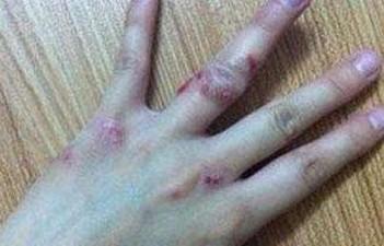老年人该怎样的预防皮肤异痒呢