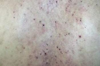 激素性皮炎的症状有哪些