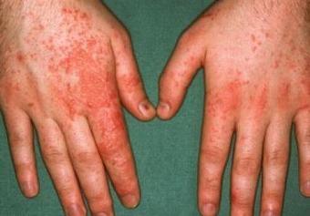 脂溢性皮炎的初期病情表现
