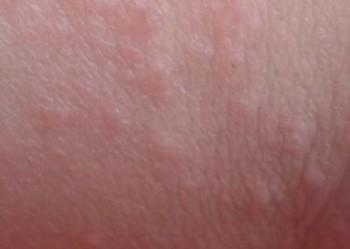 皮肤异痒是如何发生的