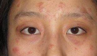 过敏性皮炎常见类型