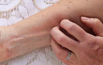 脂溢性皮炎的危害治疗有哪些呢