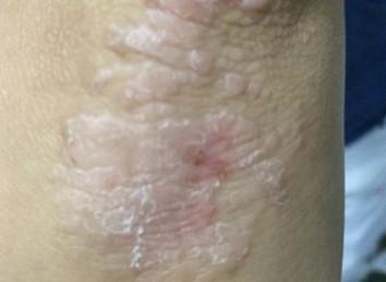 慢性皮炎的症状