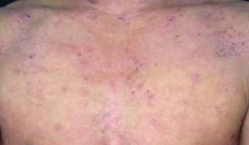 接触性皮炎都有什么症状
